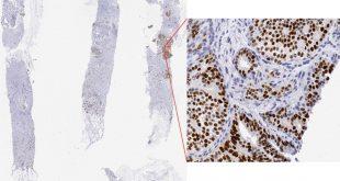 Nuove prospettive per lo studio dei tumori