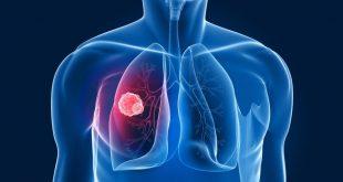 screening con tac spirale dimezza la mortalità per cancro al polmone